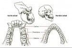 Dentadura hombre-gorila